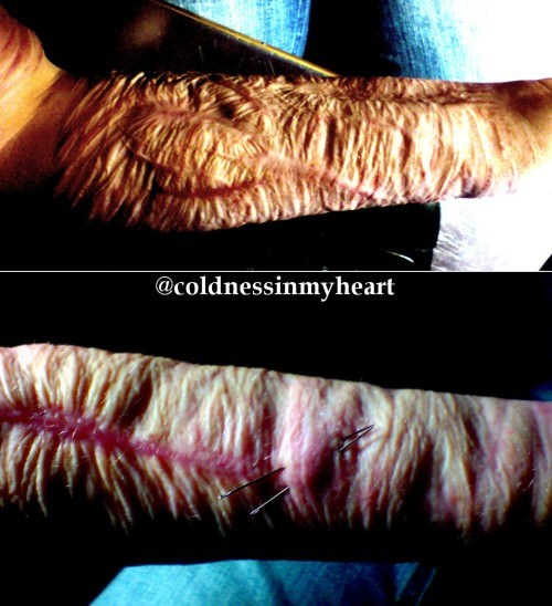 Coldnessinmyheart